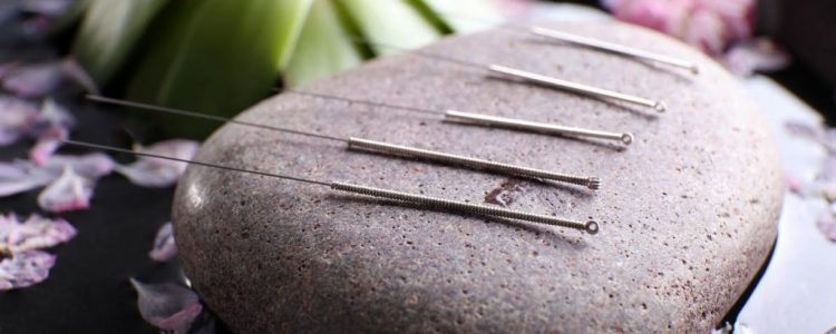 Acupuncture for Back to School Stress