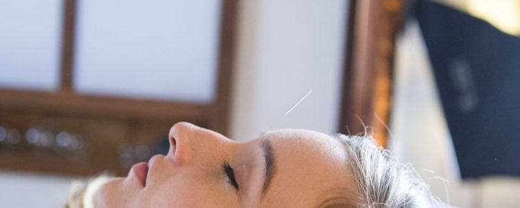 Can Acupuncture Help Migraine Headaches?